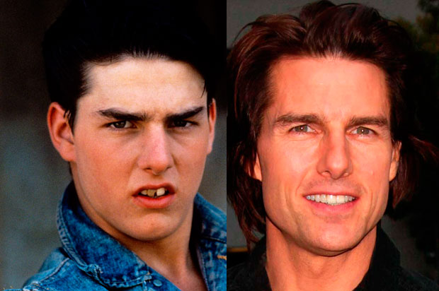 Tom Cruise impinato ai denti